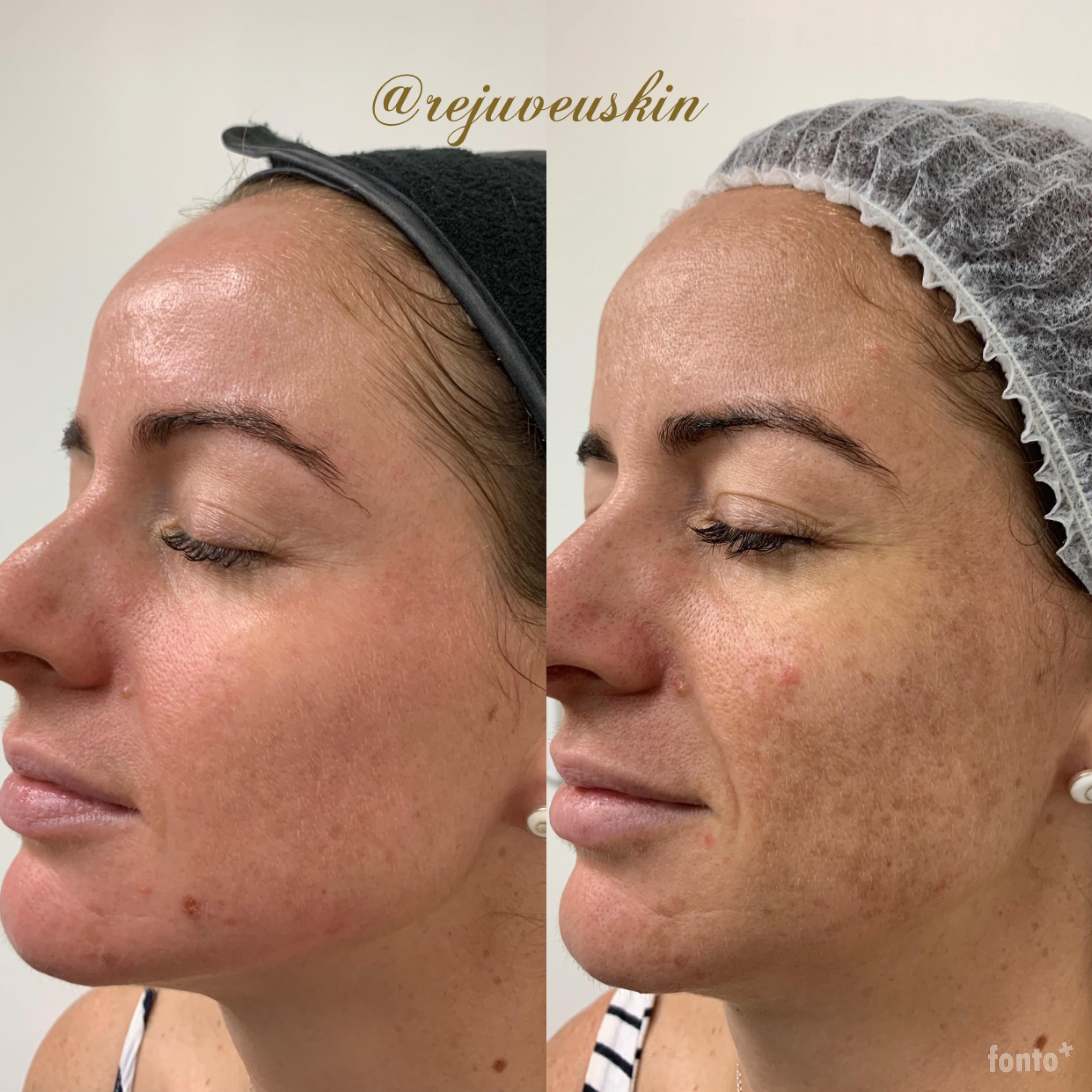 8 weeks into Cosmelan Depigmentation Method