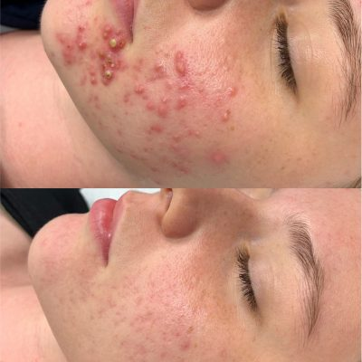 11 Weeks, 4 Treatments, 1 Scar Reduction Therapy & Full Home Care Prescription
